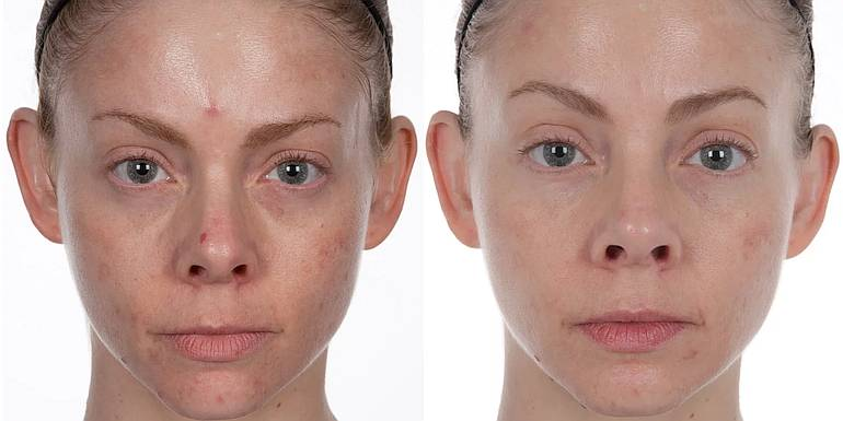 results of microdermabrasion on face
